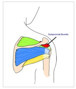 Subacromial_bursitis