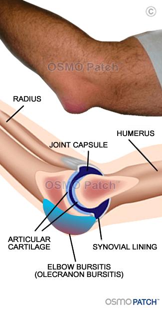 Elbow Bursitis - OSMO Patch - AU