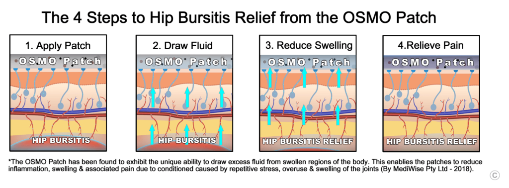 The 4 Steps to Hip Bursitis Relief from the OSMO Patch